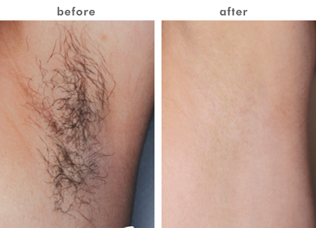 Laser Hair Removal Permanent Hair Removal New Look Solutions