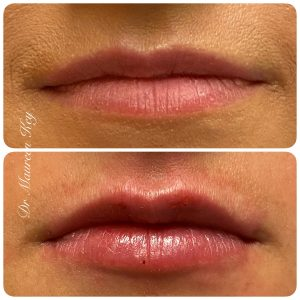 PDO Lips
